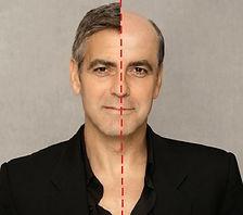 mezoterapia-skóry-głowy-gdańsk.jpg