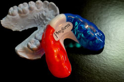 Mouthguards-2-e1461706515526