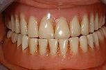 Dentures-before.jpg