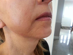 After Microcurrent (Skin Care Toronto)