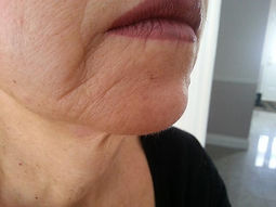 Before Microcurrent (Skin Care Toronto)