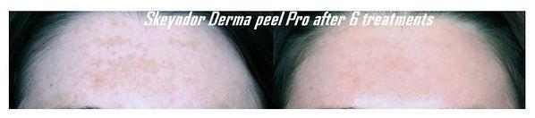 Skeyndor Derma Peel Pro image