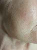 Before treatment at Skin Care Toronto