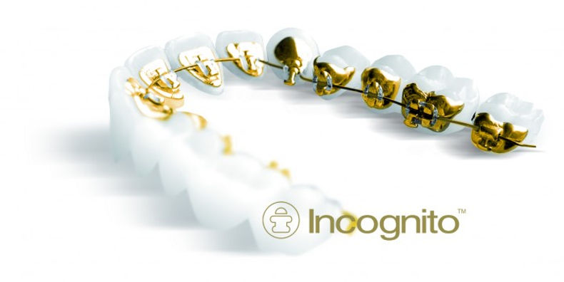incognito invisible braces