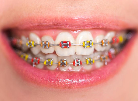 Your Oral Care Guide! Protecting your teeth whilst wearing braces.