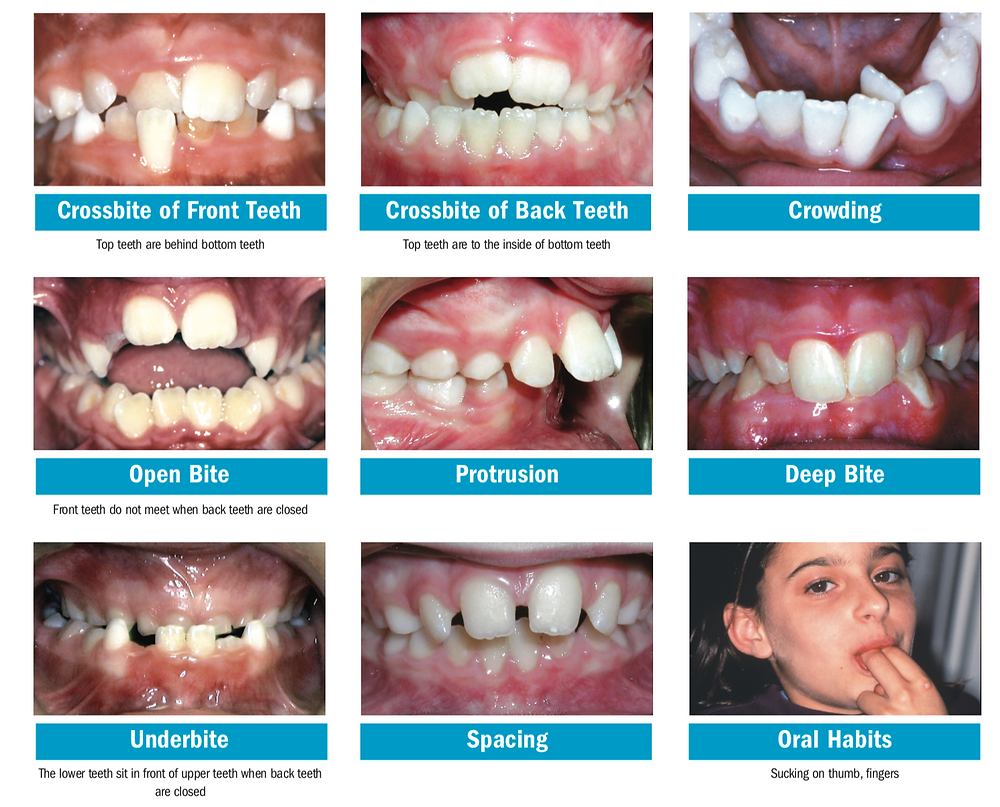 problems to watch for in growing children's teeth