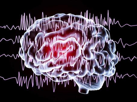 Electroencephalogram (EEG) Testing