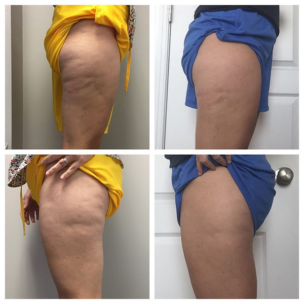 Cryoskin Cellulite Real Results