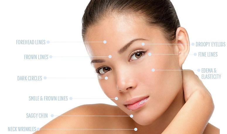 facial-acupuncture-cs_orig.jpg