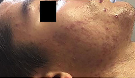 Celluma Acne Treatment Results Before and After