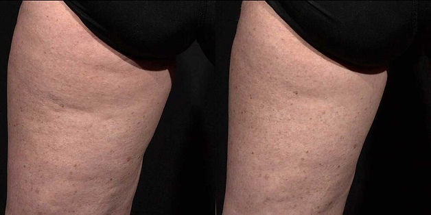 cellulite before after tempsure.jpg