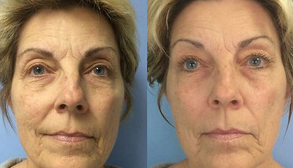 Celluma Results Anti-Aging