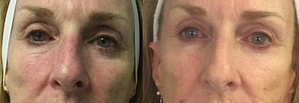 Celluma Anti-Aging Results