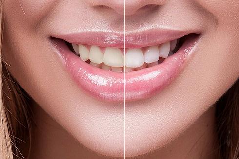 branqueamento-dentario-no-porto.jpg