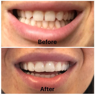 Composite bonding &teeth whitening