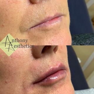 Lip restoration