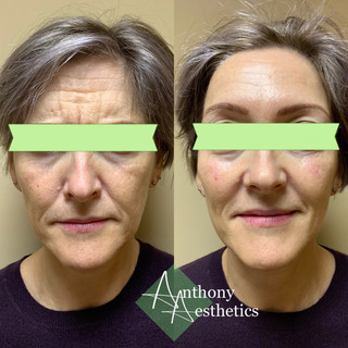 Full face rejuvenation