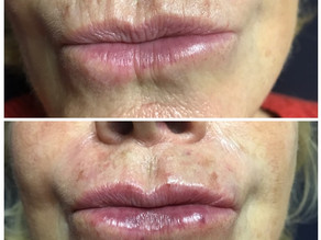 Perioral rejuvenation