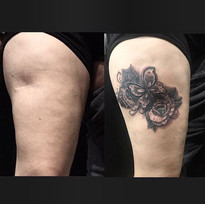 Scar Tattoo Cover Up by Damm Nice