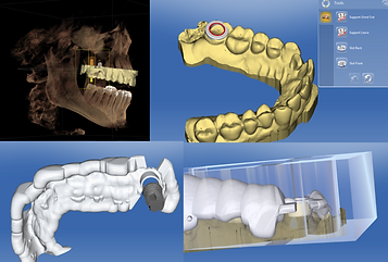 dental implants norwich