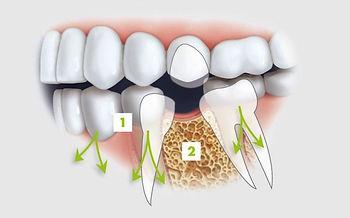 dental implants - full denture implants