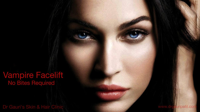 What is Vampire FaceLift ?
