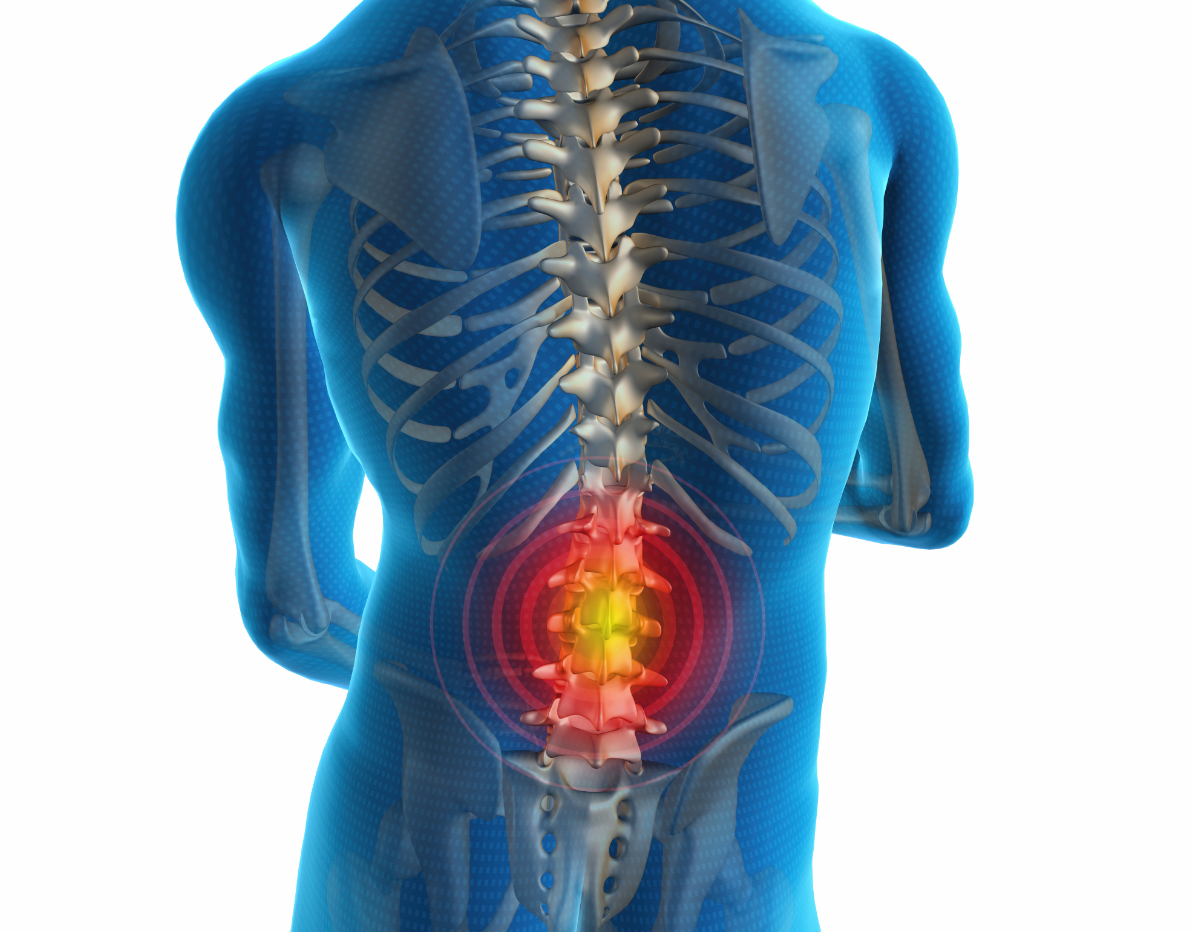 Effectively Treating Low Back Pain
