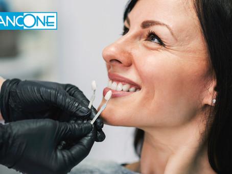 7 conseils pour développer d'avantage l'éclaircissement dentaire dans votre pratique quotidienne.