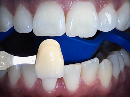 Clean & White : le nouveau protocole de routine pour des dents plus saines et plus lumineuses