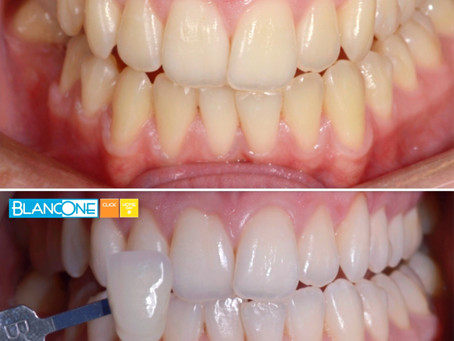 Techniques d'éclaircissement dentaire combinées sur dents vivantes : quels avantages ?