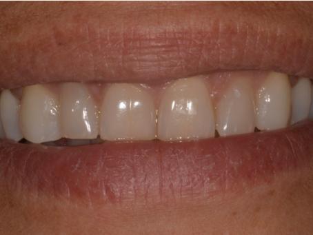 Améliorer l'esthétique du sourire grâce à l'éclaircissement dentaire