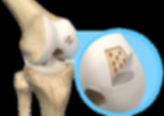 Knochenmarkstimulation durch Microfracturing am Kniegelenk