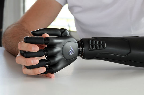 coolste Handprothese