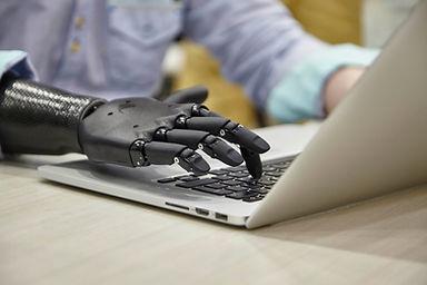 Tippen mit Handprothese