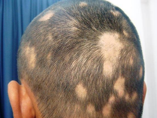 Doctor Yu's Clinical Notes XIV: Healing Spot Baldness and Full Baldness with Ease   快速治愈斑秃和全秃的方法