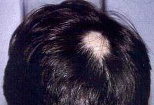 How I Cured 46 Years Old Spot Baldness and Hair Loss——In Two Month I 46年斑秃和脱发——两个月治愈!