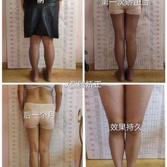 徐星凯X型腿矫正案例.jpg