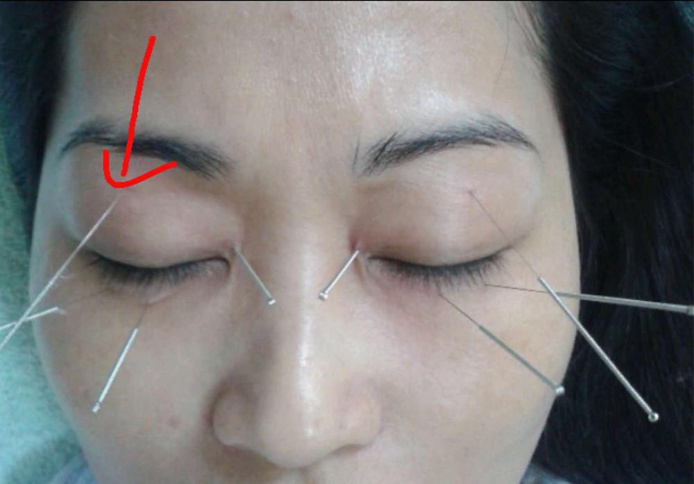 谢奇眼部深针疗法