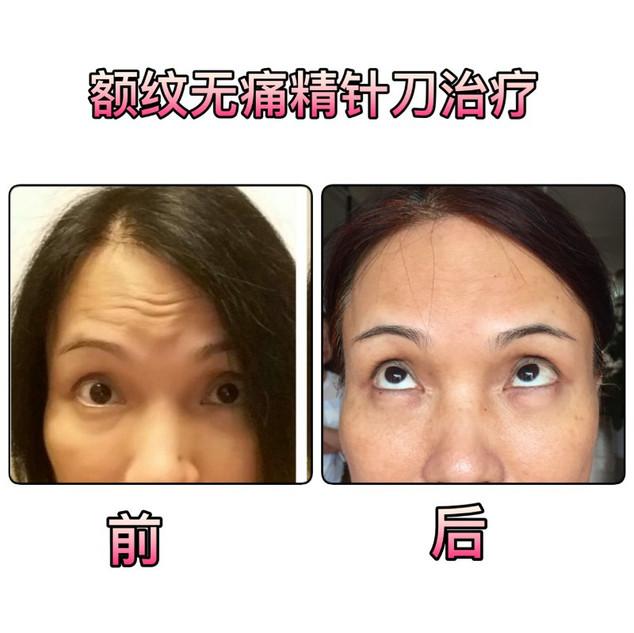 张瑾例3.jpg