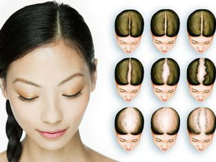 Female Hair Loss Can be Cured by Traditional Chinese Medicine | 传统中医药对于女性脱发的作用