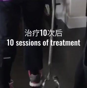 BG_Acupuncture_cropped.mp4