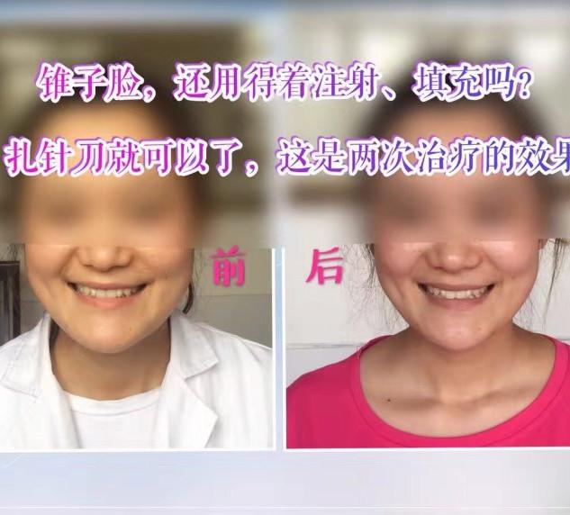 张瑾例5.jpg