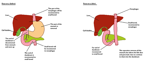 Gastrectomy-Before-and-After.png