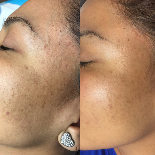 Micro-Needling Before ad After 1 session