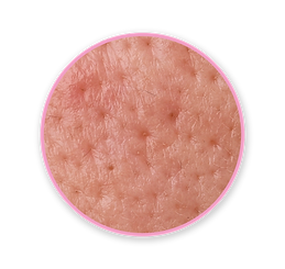 Skin_icon-04.png