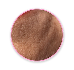 Skin_icon-03.png