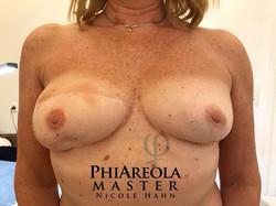 phiareola-9