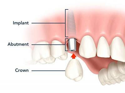 implant-dentistry-4.jpg