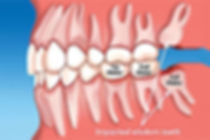 extractions-pic-2.jpg