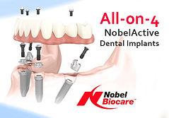 phuket-dental-offer-all-on-4.jpg